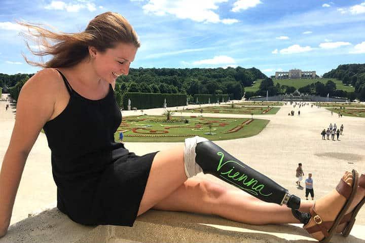 chica protesis Viena Austria